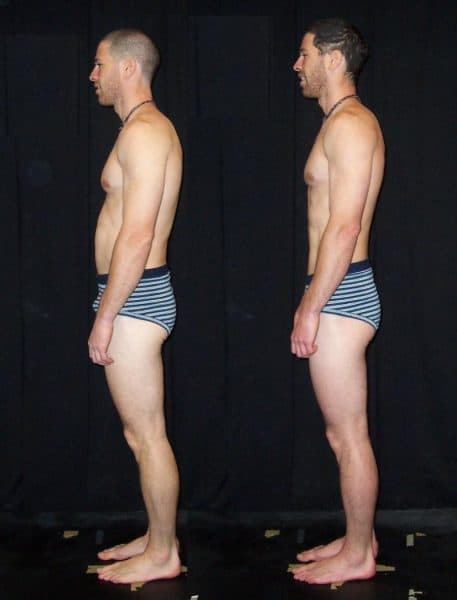 Before and After Rolfing (side)